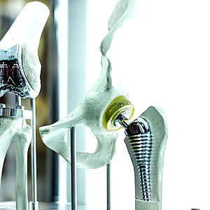From implants to instrumentation, our medical alloys are of the highest quality